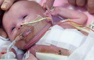 Лекари спасиха новородено със сърце извън тялото (видео)
