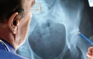 В МБАЛ – Поморие ще се проведе скринингова кампания за превенция на остеопорозата